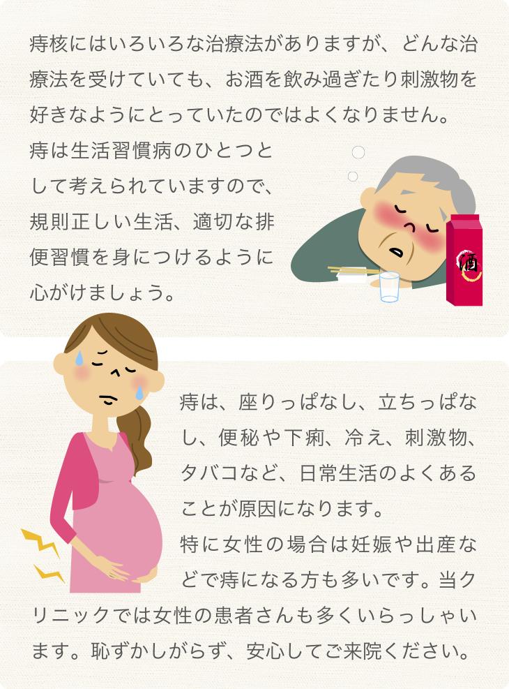 痔の治療について